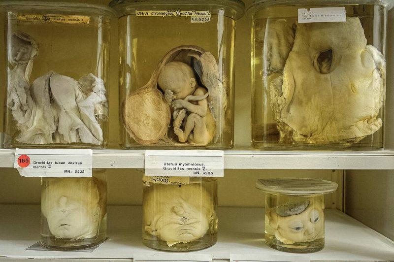 Музей патологоанатомии